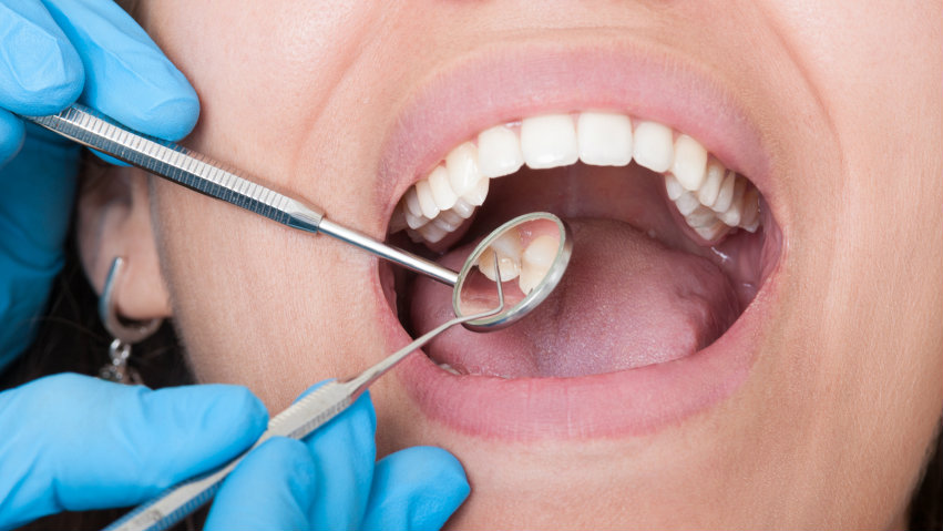 Why Offer Dental Benefits: The Effect of Oral Health on Chronic Diseases